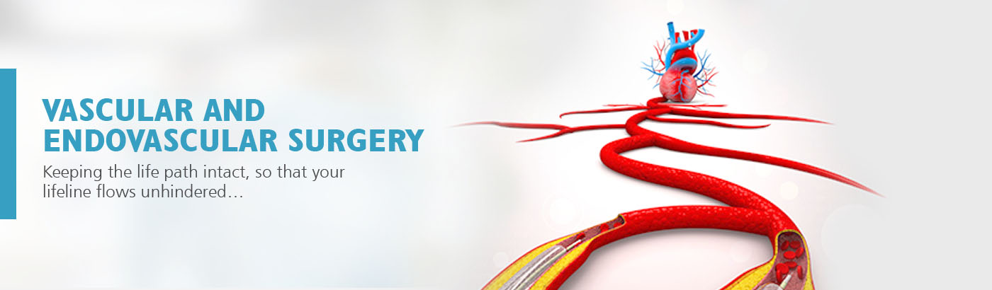 best Vascular & Endovascular Surgery hospitals in india
