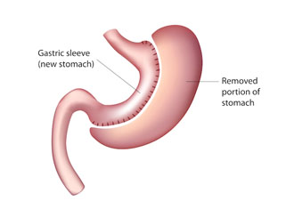 cost of bariatric surgery in india