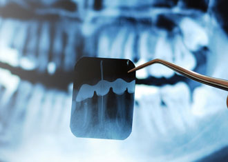 best Dental hospital in india